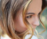 Aknenarben entfernen in Wien mit Laser bei Aestomed